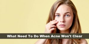 What Need To Do When Acne Wont Clear