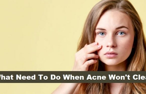 What Need To Do When Acne Won't Clear